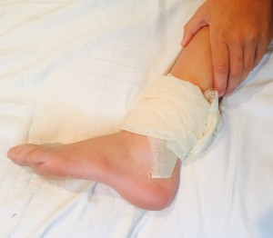compensation for fractured ankle